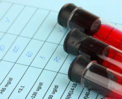 Какова норма общего белка в крови?