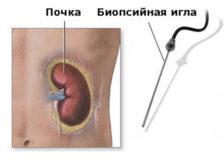 Показания к проведению биопсии почки