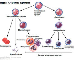 Лечение лимфоцитоза у ребенка