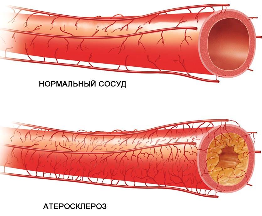 Льняное семя при высоком холестерине