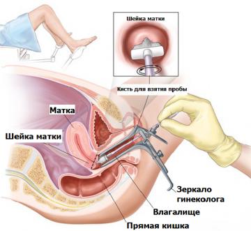 Мазок у гинеколога фото 27-313