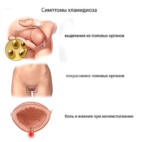 Оргазм при хламидиозе