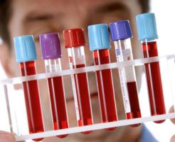 Диагностика крови — уровень фибриногена повышен