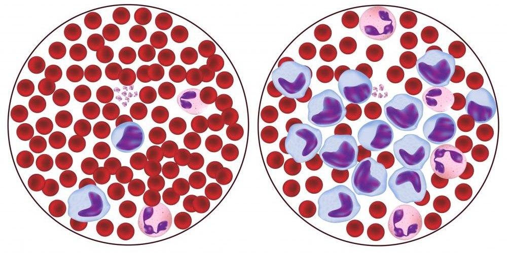 Патологические клетки крови не обнаружены 193