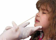 Исследование мазка из носа на эозинофилы
