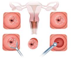 Являются ли нормой выделения после биопсии шейки матки?