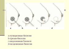 Особенности проведения инцизионной и эксцизионной биопсии