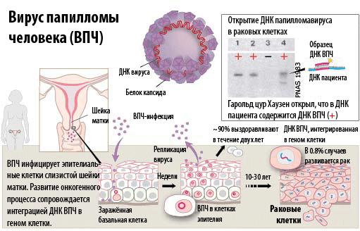 Вирус папилломы человека ВПЧ  симптомы и лечение
