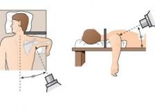 Когда назначают МРТ плечевого сустава?
