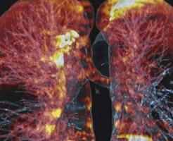 Делают ли МРТ легких и бронхов?