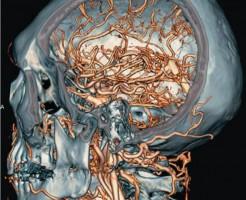 Что показывает компьютерная томография головы?