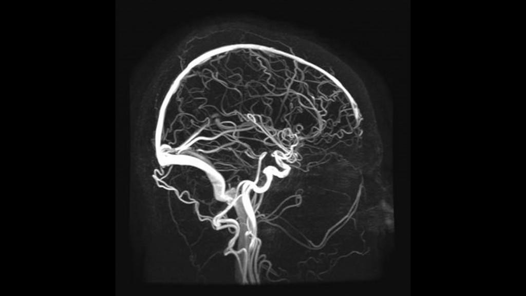 Снимок сосудов головного мозга