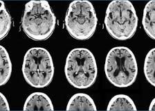 Метод нейровизуализации при помощи КТ головного мозга