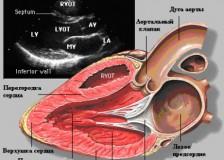 Некоторые данные расшифровки результатов УЗИ сердца