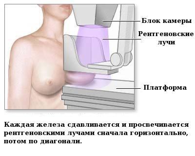 Просвечивание маммографом