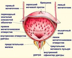 Определение заболеваний при помощи УЗИ мочевого пузыря