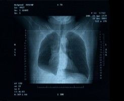 Точный метод диагностики на МРТ легких