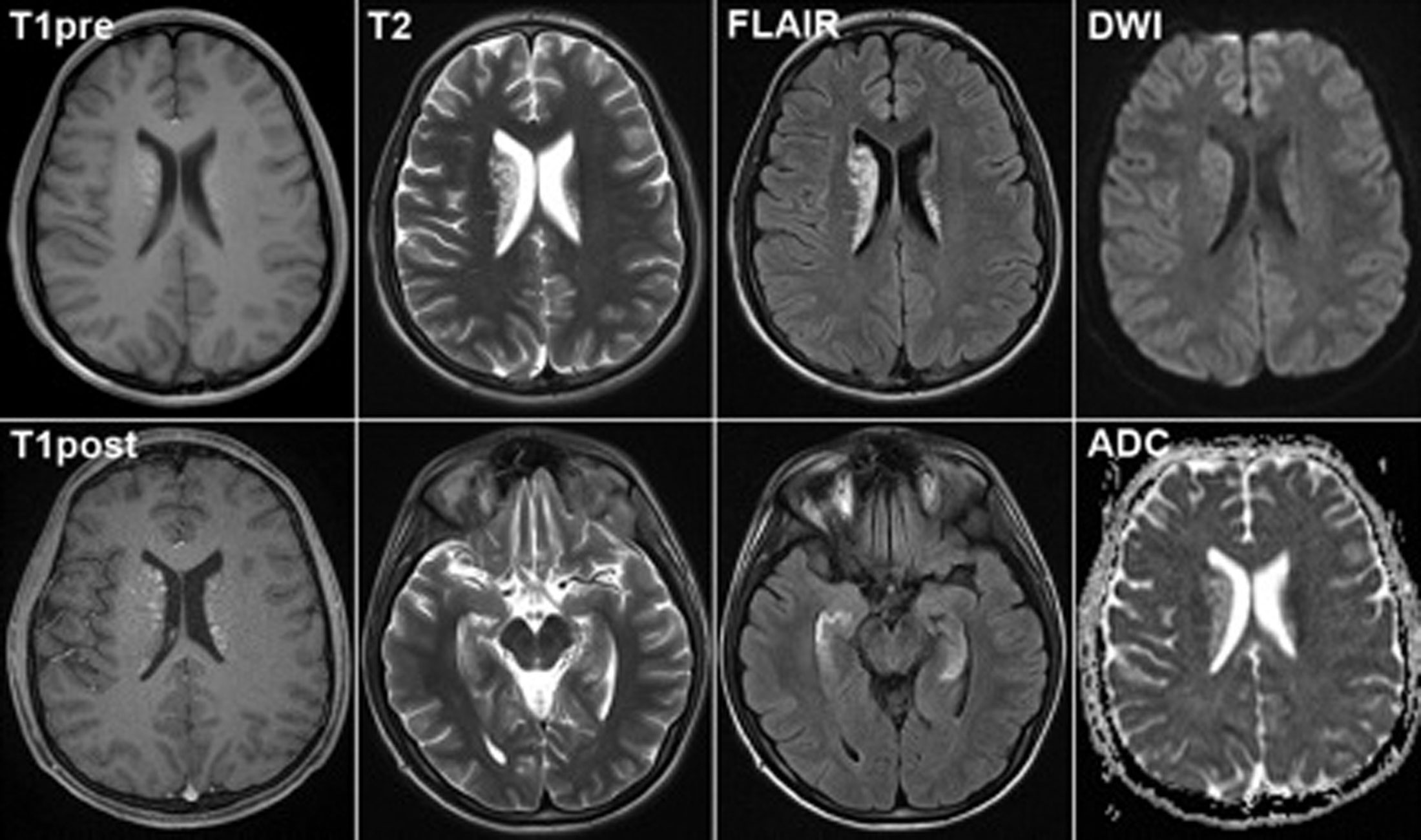 Послойный снимок мозга на МРТ