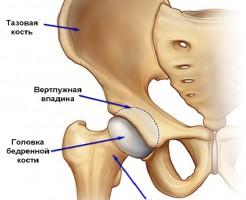 Что показывает УЗИ тазобедренного сустава?