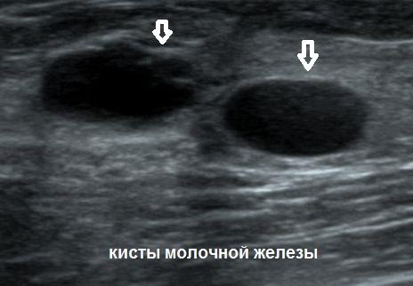 Признаки абсцесса молочных желез и варианты его лечения