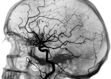 Безопасный и информативный метод УЗИ головного мозга
