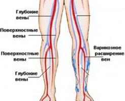 Показания для проведения УЗИ нижних конечностей