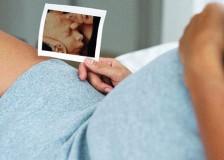 На каком сроке надо делать УЗИ при беременности?