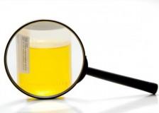 Подготовка и сдача клинического анализа мочи