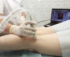 Определение работы сосудистой системы нижних конечностей на УЗИ сосудов ног