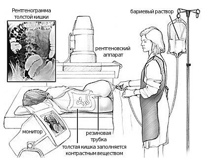 Подготовка к ирригоскопии кишечника