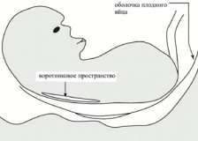 Нормы биохимического скрининга 1 триместра беременности