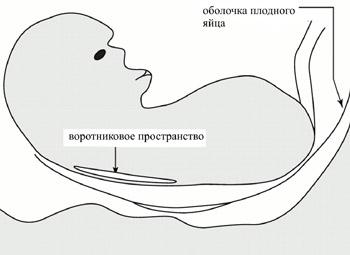 Схема измерения толщины воротникового пространства