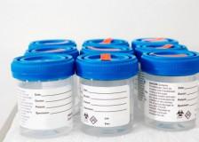 Состояние желудочно-кишечного тракта в расшифровке анализа кала