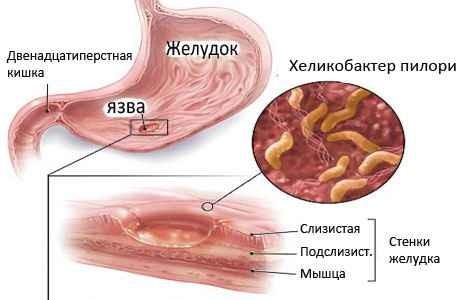 Хеликобактер пилори в желудке и кишечнике
