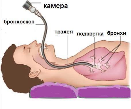 Процедура бронхоскопии