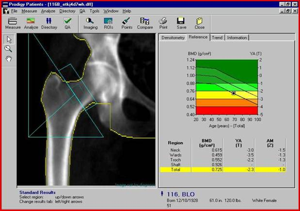 Показатели плотности костей