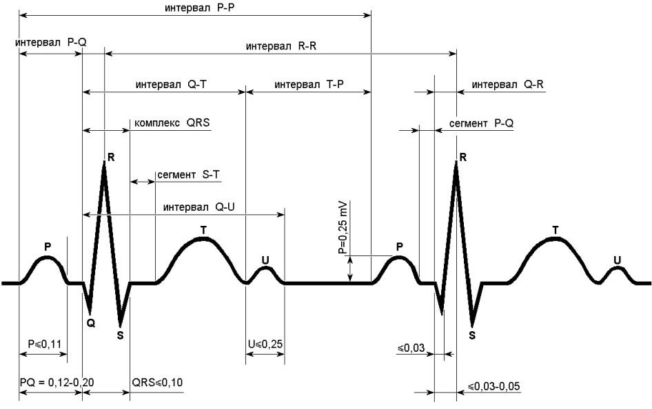 Схематическое изображение нормальной ЭКГ
