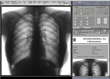 Анализ и расшифровка результатов флюорографии