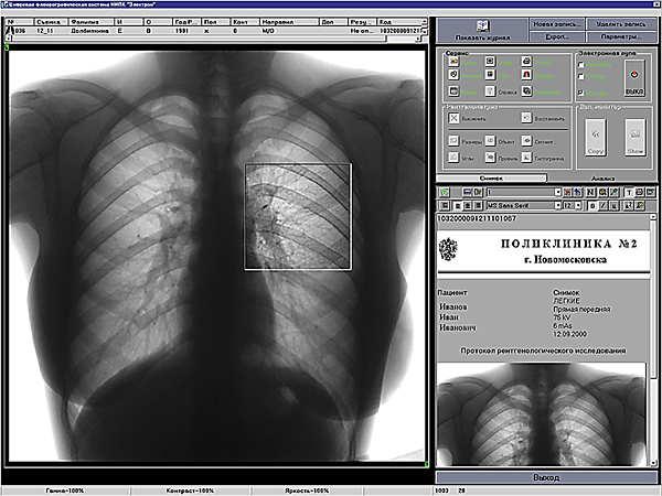 Цифровая флюорография
