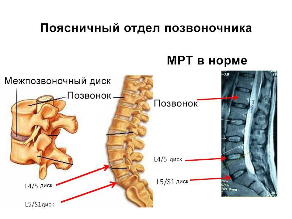 МРТ здорового позвоночника
