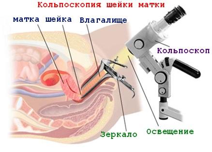 Что такое кольпоскопия в гинекологии и как ее делают?