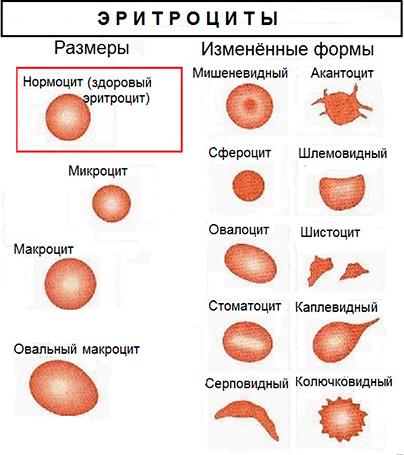 Таблица видов эритороцитов