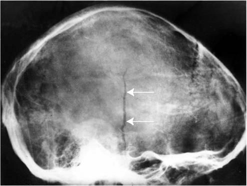 Трещина в черепе на фото