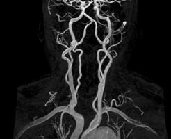 Проверка сердечно-сосудистой системы на МРТ сосудов