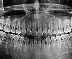 Показания для проведения рентгена зубов