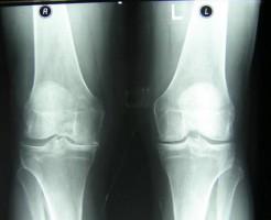 Изменения и патологии на рентгене коленного сустава