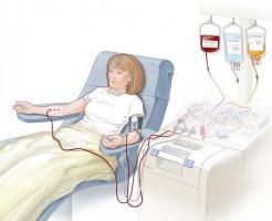 Польза и вред от процедуры плазмафереза