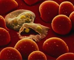 Метод диагностики паразитов по анализу крови на глисты