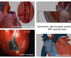 В каких случаях назначают МРТ сердца?