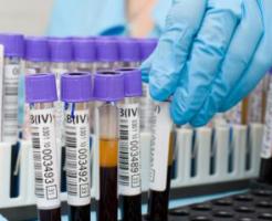 Важная информация об организме из расшифровки биохимического анализа крови